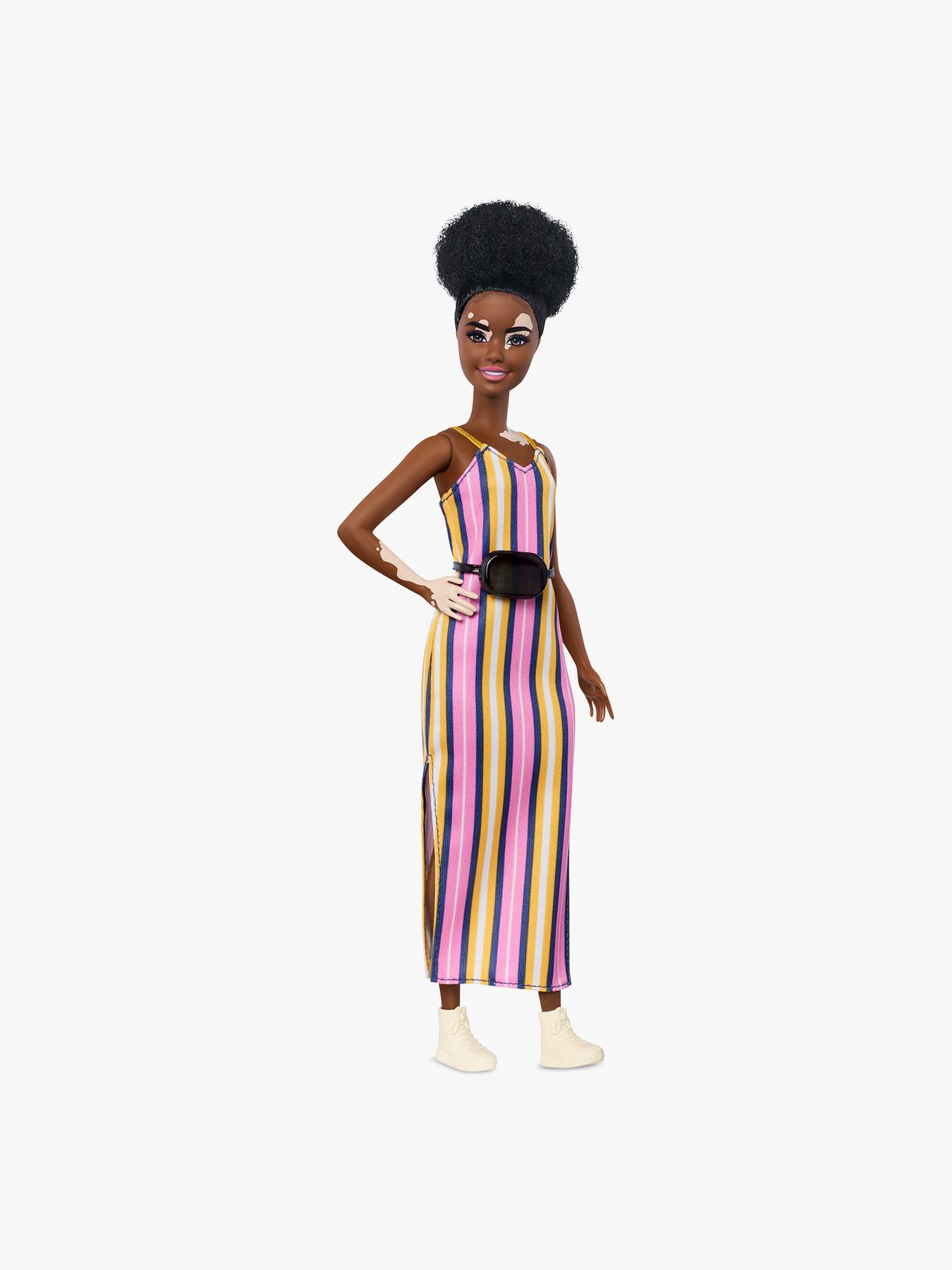 preferir Sabor Hacia fuera  Barbie Fashionistas Doll with Vitiligo | Action Figures & Dolls | Fenwick
